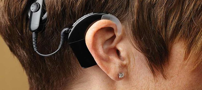 Best cochlear implant surgery in Vadodara